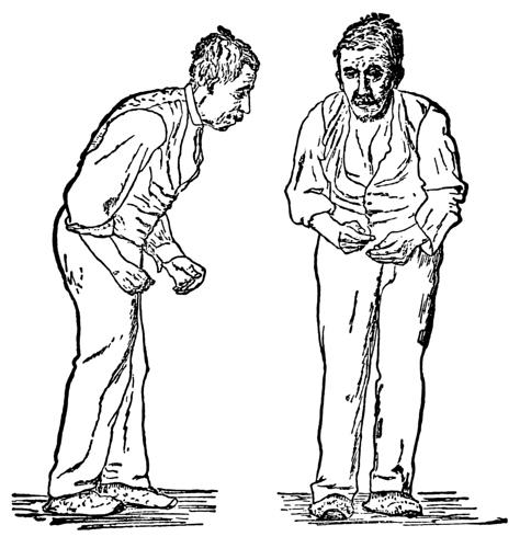 Paralysis_agitans_(1907,_after_St._Leger)